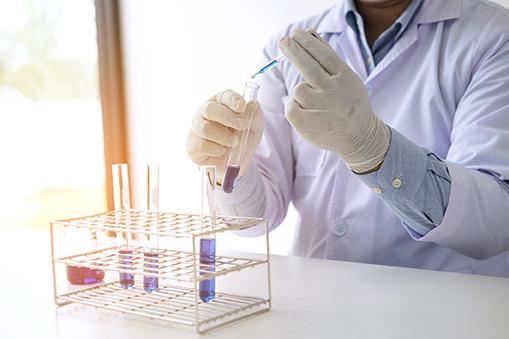 Labor –Mann mit Reagenzglas